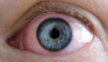 Göz iltihabı belirtileri nelerdir? Göz iltihaplanması nasıl geçer?