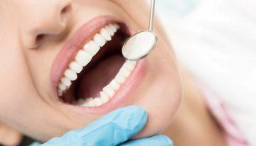 Diş çürüğüne engel olan besinler nelerdir?