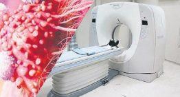 Röntgen ile kanser arasında bağ var