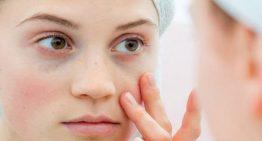 Lupus (SLE) hastalığı nedir? Lupus (SLE) hastalığı belirtileri nelerdir?