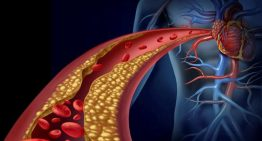 Kolesterol nedir, belirtileri nelerdir?