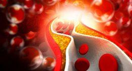 Kolesterol kontrolü hayati öneme sahip