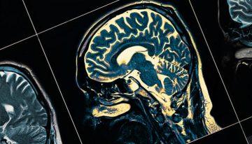 Parkinson hastalığında glutatyon tedavisi