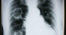 Sigara, Kovid-19 ile enfekte hücre sayısını üçe katlıyor!
